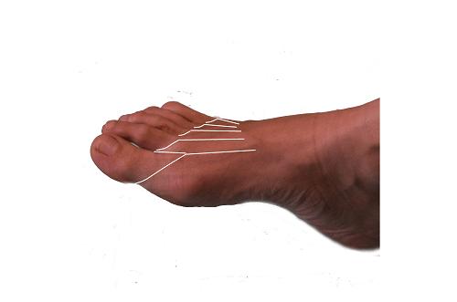 tarsalis-metatarsális ízületi fájdalom jobb vállízület fájdalma