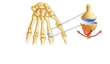 a jobb térdízület kórtörténetének osteoarthritis