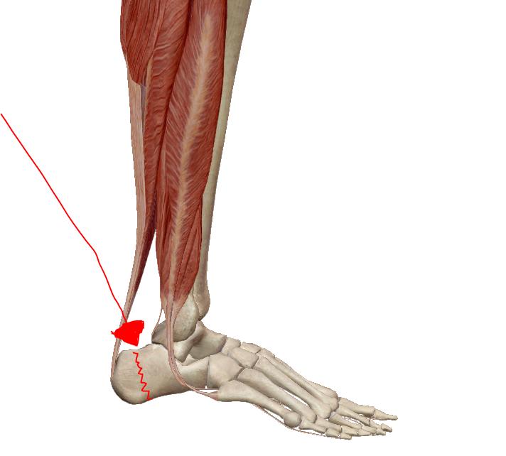 ízületi gyulladás sarok artritisz kezelése