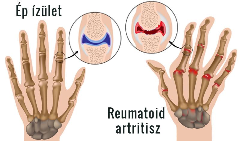 a különbség az ízületi gyulladás és a kéz arthrosis között)