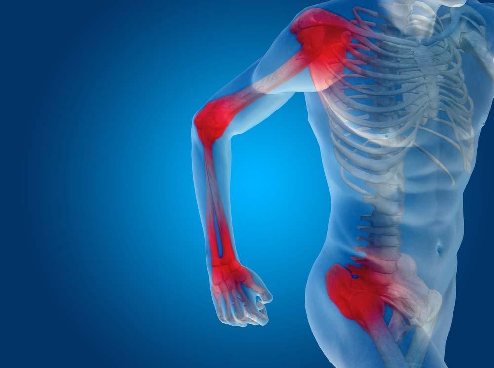 fehérje ízületi fájdalom