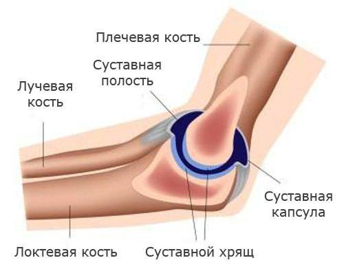 Ha a mozgás fájdalommal jár - Napidoktor