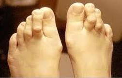 fájdalom a láb és a lábujjak ízületeiben