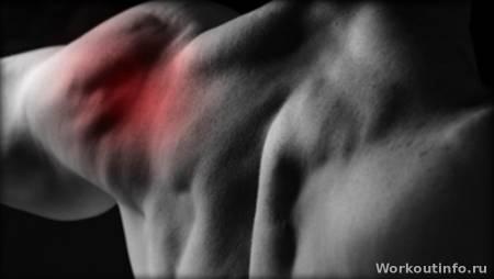 kar fájdalom izomízület
