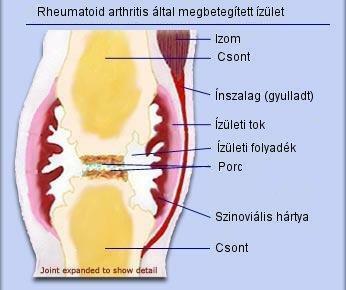 Ízületi gyulladás miatt is fájhat a hüvelykujj | ptigroup.hu