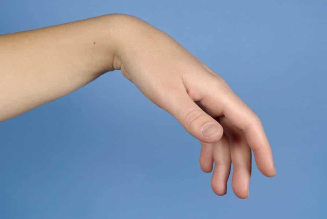 a hüvelykujj-kapszula károsodása)