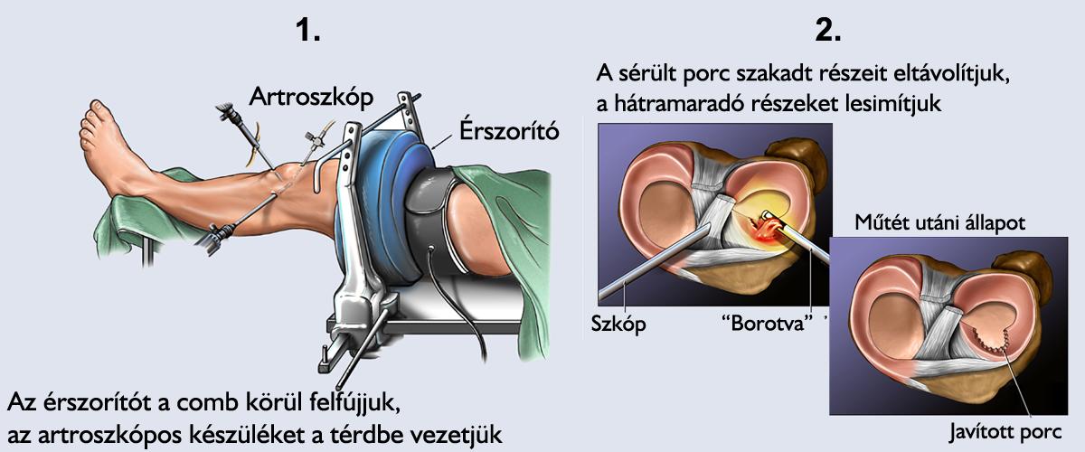 a térd belső meniszkuszának kezelése
