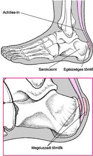 Acut arthritis urica