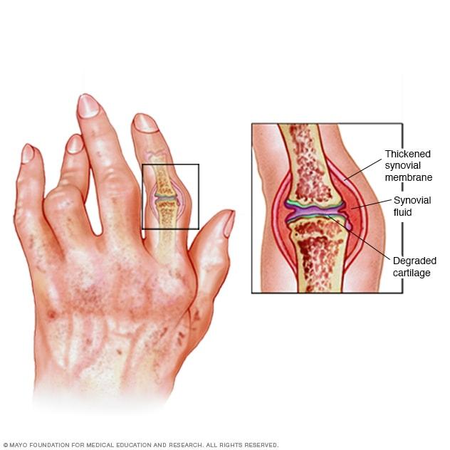 Hogyan azonosítható a rheumatoid arthritis?