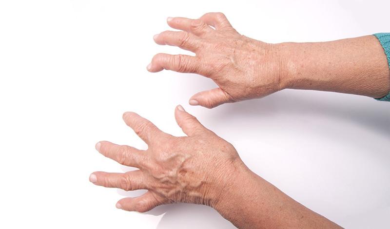 az ujjak ízületi gyulladásának első jelei