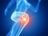 térdízület kezelése gonarthrosisban vagy artrózisban