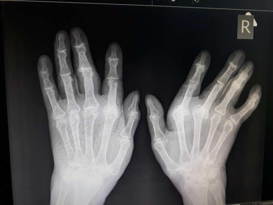 könyökízület periarthritis kezelése a vállízület kialakulása artrózis esetén