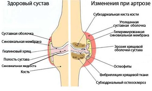 mi köze a térd artrózisához)