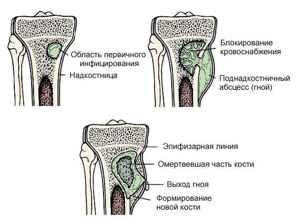 csípőízületek dysplasztikus artrózisa fájó könyökfájdalomkezelés