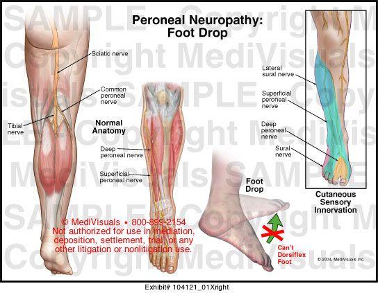 ízületi fájdalom lapos láb