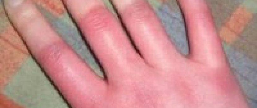 ízületi betegség az ujjakon