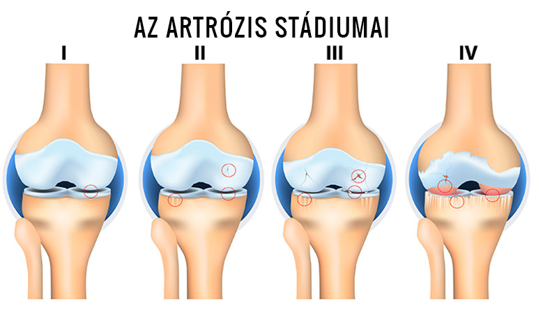 műtét térd artrózisának kezelésére)