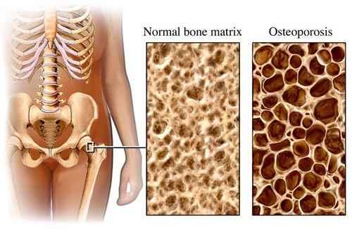az ágyéki csontritkulás kezelési rendje