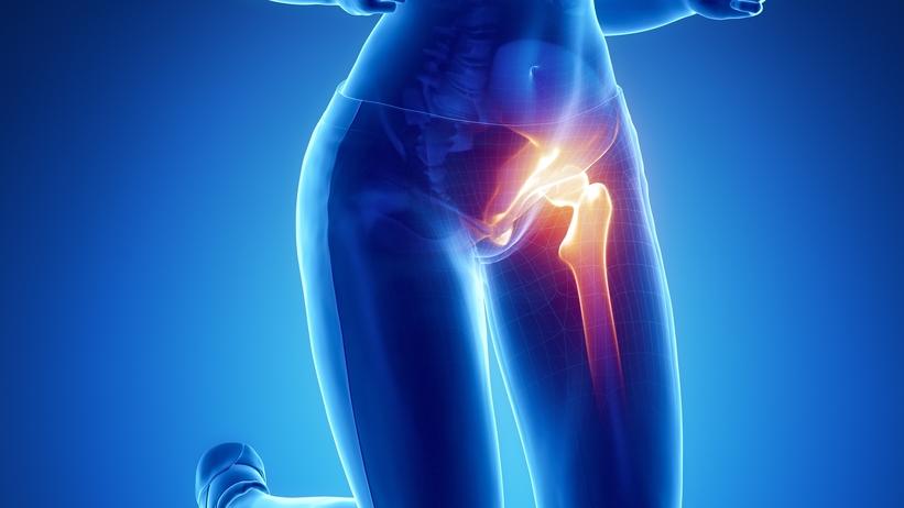 az 1. fokú csípőízület artrózisának kezelése)