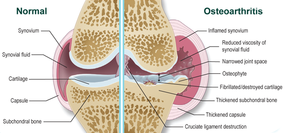 hogyan kezeljük az ízületi sprainket