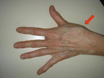 a boka rándulás tünetei és kezelése az a mazat a térdízületektől