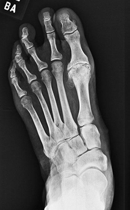 Metatarsalis phalangus arthrosis. A láb deformitásai SZTE Ortopédiai Klinika. - ppt letölteni