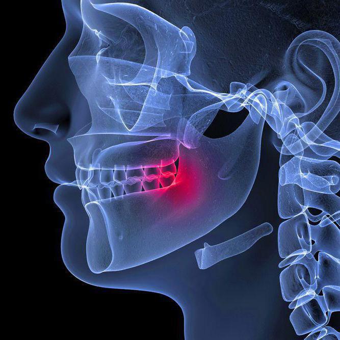 Az állkapocsízületi gyulladás (TMJ) tünetei és kezelése