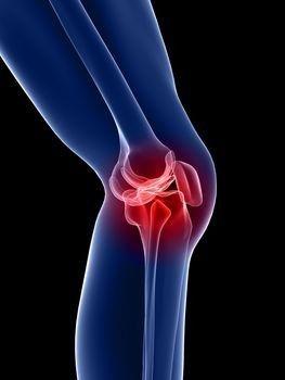 a térd deformáló artrózisának gyógyszeres kezelése
