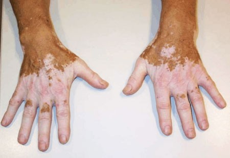 psoriasis artritisz ujjkezelés