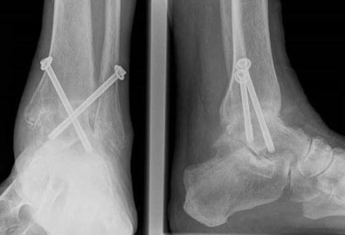 a bal térdízület posztraumás artrózisa)