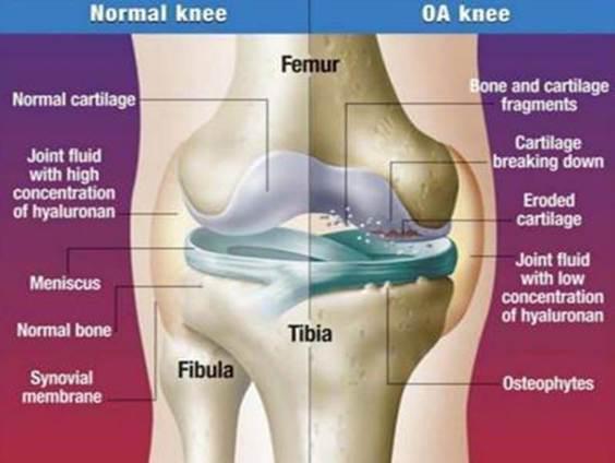 görcsök az artrózis kezelésében)