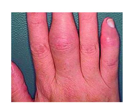 hogy van az ujjak ízületi gyulladása