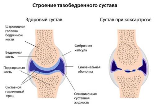 1 fokos kezelés a csípőízület deformáló coxarthrosisában