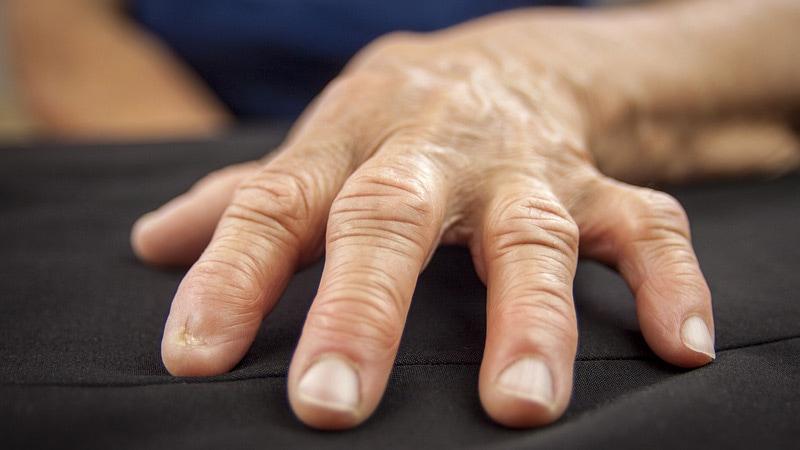 arthrosis argo kezelés