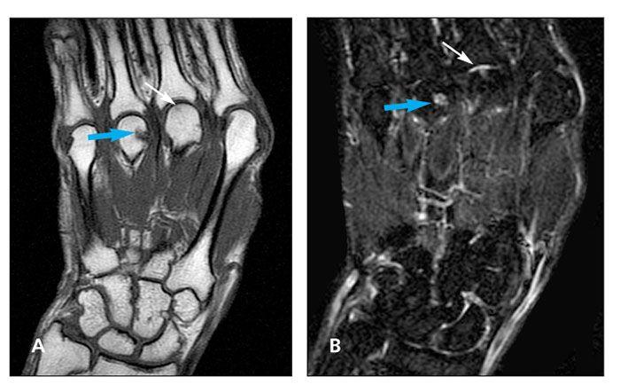 rheumatoid arthritis radiology mri)