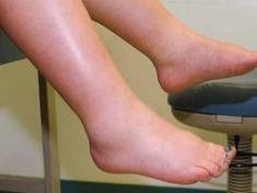 a lábak ízületei miért fájnak