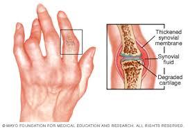 Orvos az ízületek: reumatológus, artrológus, ortopéd vagy más személy? - Osteochondrosis -