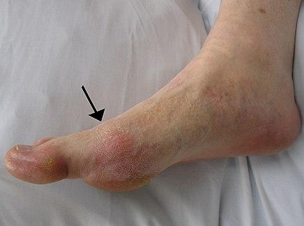 ízületi gyulladás a lábkezelő szereknél