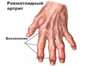 Országos Scleroderma Közhasznú egyesület