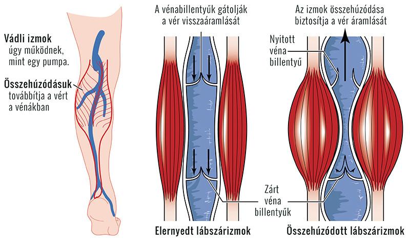 krónikus térdízületi kezelés a könyök ízületei fájnak a karok behajlításakor
