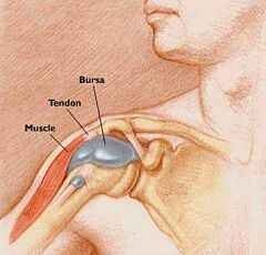 ízületi gyulladásos vállízületi tünetek kezelése