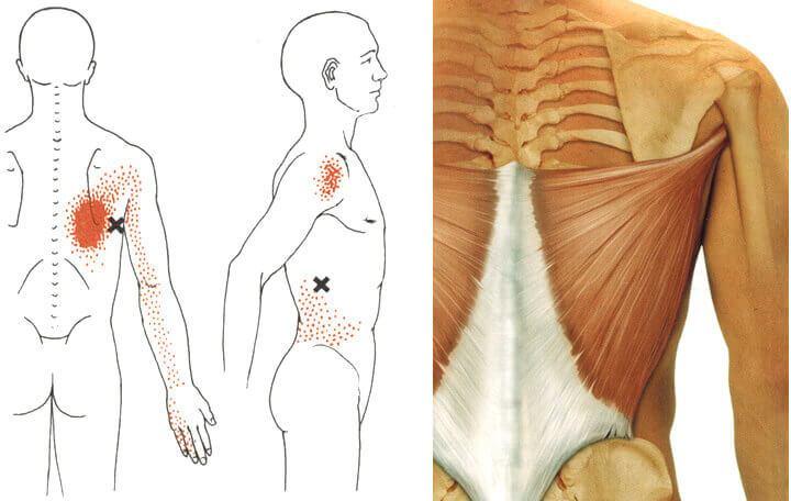 gyógyszerek a mellkasi régió csontritkulásának kezelésére