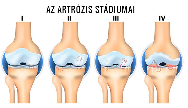 görcsök az artrózis kezelésében