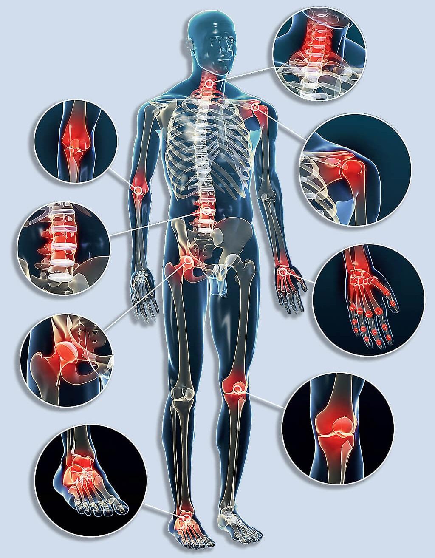arthroso vállízület