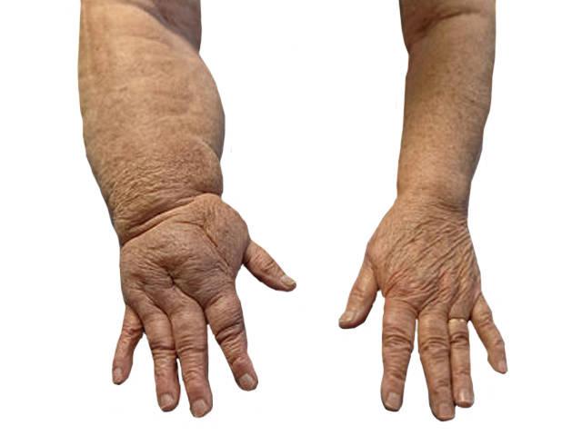 kondroitin glükózamin tabletta ára fájdalom a lábujjak ízületében járás közben