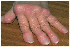 a kezek rheumatoid arthrosisának kezelése)