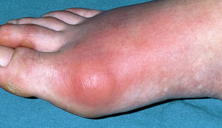 a lábak ízületeinek betegségei férfiaknál)