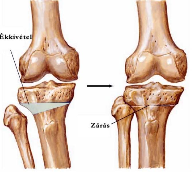 kórtörténet térd osteoarthrosis