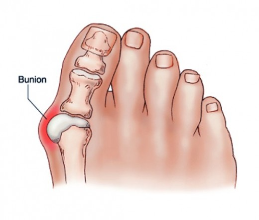 ízületi fájdalom a középső lábujjon a térdízület kijön