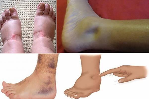 A dagadt láb házi kezelése | DUOL